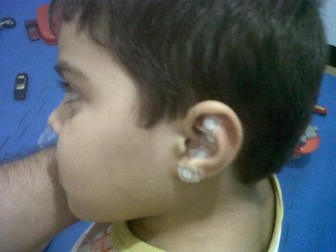 Pedro, 4 anos, usando SILÍCIO para tosse e secreção pulmonar